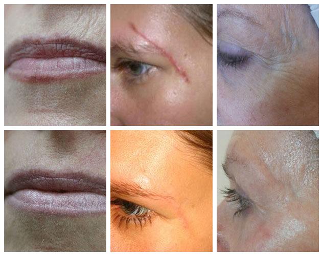 JetPeel Gesichtsbehandlung Kosmetik Visage Kosmetikstudio in Innsbruck und Ebbs Tirol